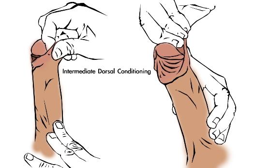 foreskin-restoration-manual-tugging-method-1-dorsal