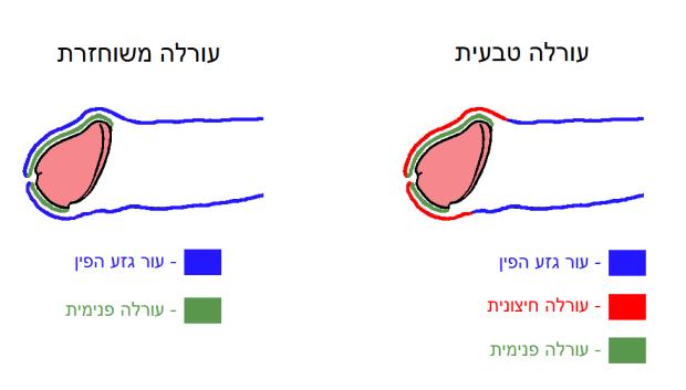 intact_vs_restored_heb